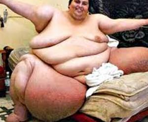 ini adalah salah satu gambar manusia yang paling gemuk