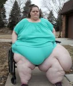 wanita gemuk dengan berat badan 357 Kg